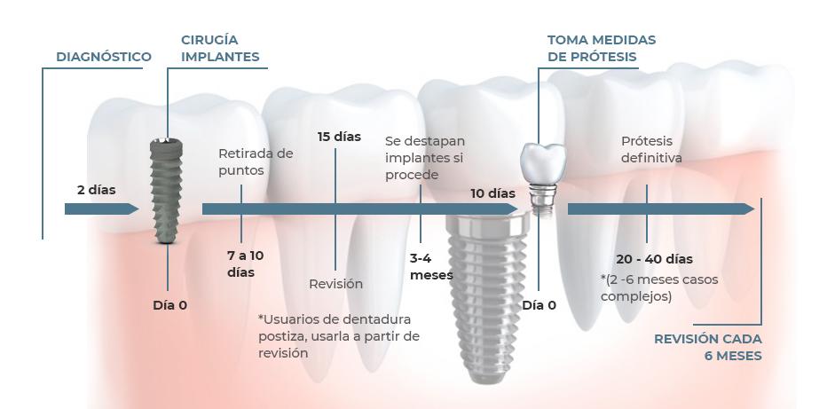 dentista de confianza fases