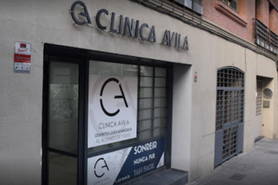 clinica dental en pacífico madrid